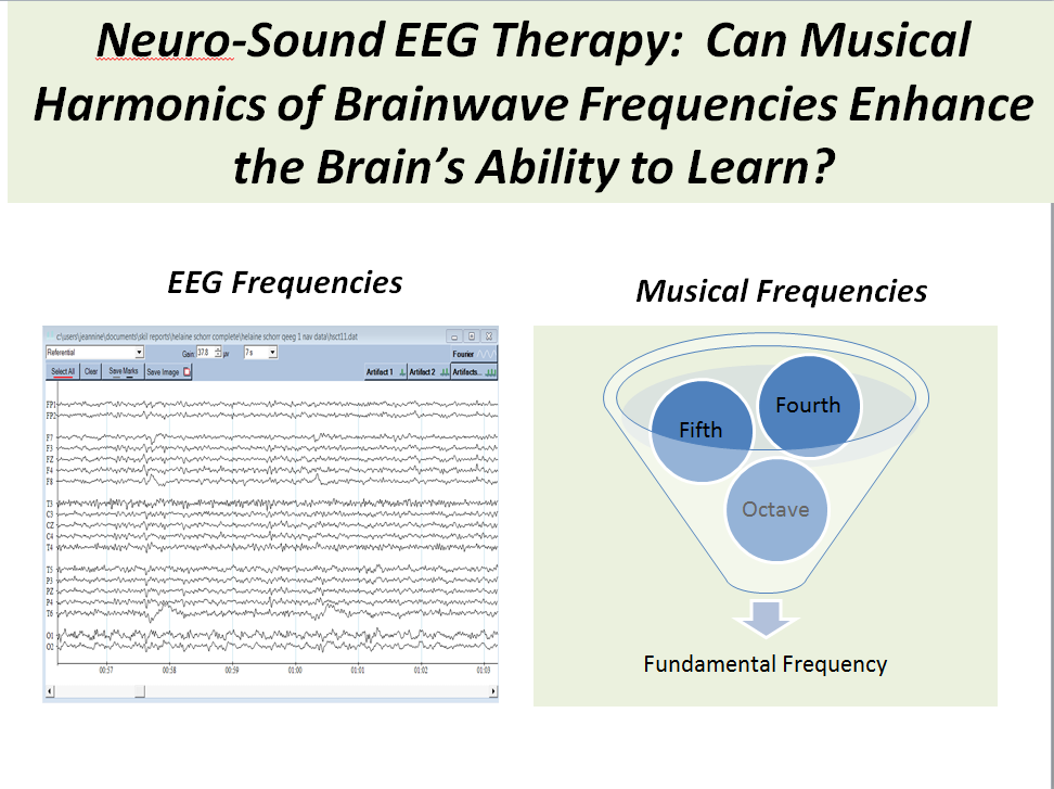Neuro-Sound-IAMM-slide-Presentation-Page1